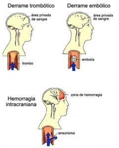 derrame01