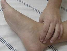 ulcera1