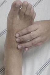ulcera2